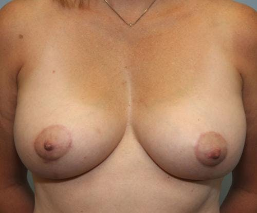 Breast Lift Gallery - Patient 58179159 - Image 2