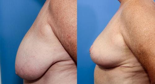Breast Reduction Gallery - Patient 58179160 - Image 2