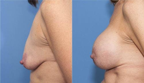 Breast Lift with Augmentation Gallery - Patient 58179161 - Image 3