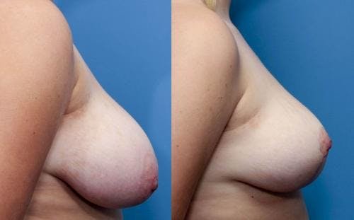 Breast Reduction Gallery - Patient 58179162 - Image 2