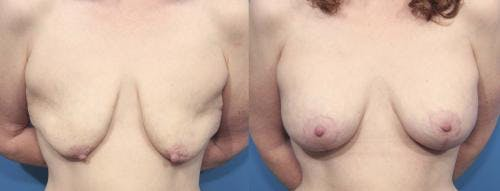 Breast Lift with Augmentation Gallery - Patient 58179163 - Image 1