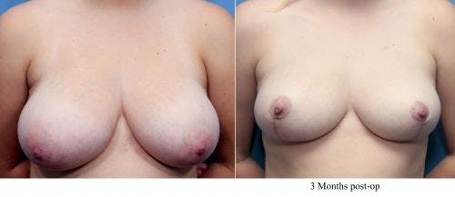 Breast Reduction Gallery - Patient 58179162 - Image 1