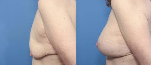 Breast Lift with Augmentation Gallery - Patient 58179163 - Image 2