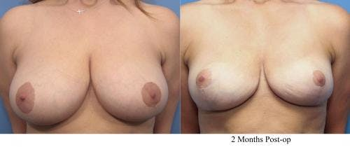 Breast Reduction Gallery - Patient 58179164 - Image 1