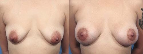 Breast Lift with Augmentation Gallery - Patient 58179166 - Image 1