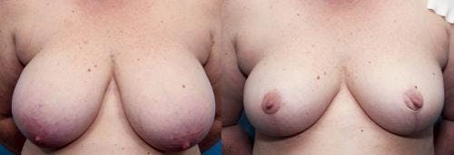 Breast Reduction Gallery - Patient 58179165 - Image 1