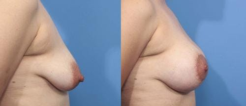 Breast Lift with Augmentation Gallery - Patient 58179166 - Image 2