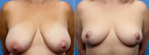 Breast Reduction Gallery - Patient 58179167 - Image 1