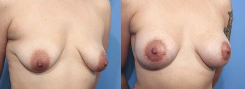 Breast Lift with Augmentation Gallery - Patient 58179166 - Image 3
