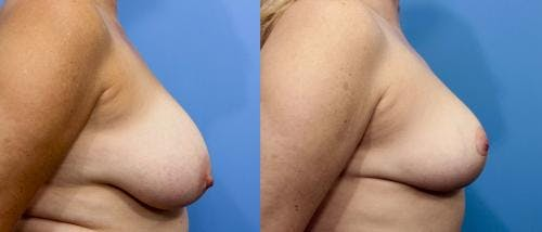 Breast Reduction Gallery - Patient 58179167 - Image 2