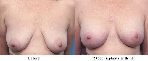 Breast Lift with Augmentation Gallery - Patient 58179170 - Image 1