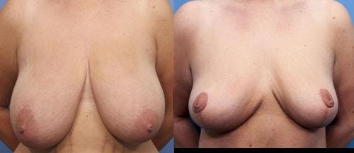 Breast Reduction Gallery - Patient 58179168 - Image 1