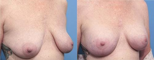 Breast Lift with Augmentation Gallery - Patient 58179170 - Image 2