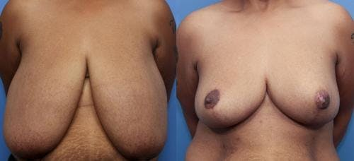 Breast Reduction Gallery - Patient 58179169 - Image 1