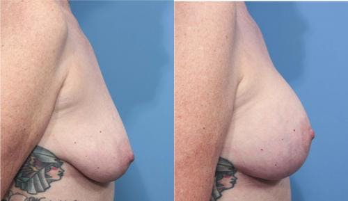 Breast Lift with Augmentation Gallery - Patient 58179170 - Image 3