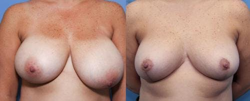 Breast Reduction Gallery - Patient 58179172 - Image 1