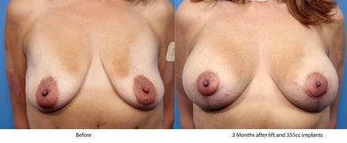 Breast Lift with Augmentation Gallery - Patient 58179174 - Image 1