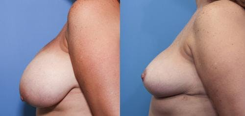Breast Reduction Gallery - Patient 58179172 - Image 2