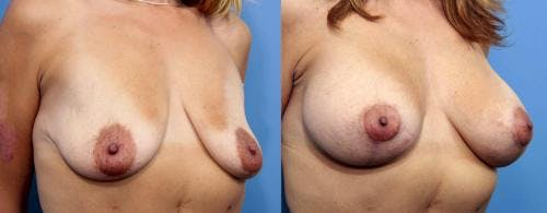 Breast Lift with Augmentation Gallery - Patient 58179174 - Image 2
