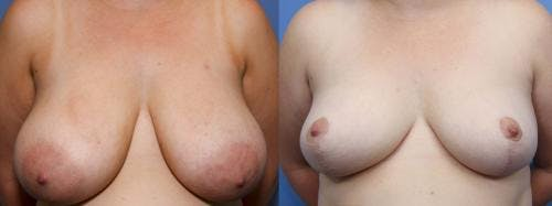 Breast Reduction Gallery - Patient 58179173 - Image 1