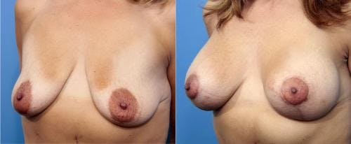 Breast Lift with Augmentation Gallery - Patient 58179174 - Image 4