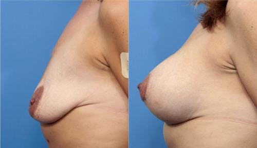 Breast Lift with Augmentation Gallery - Patient 58179174 - Image 5