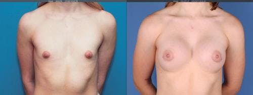 Correction of Tuberous Breast Gallery - Patient 58190572 - Image 1