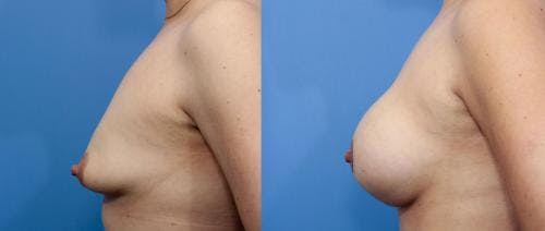 Breast Lift with Augmentation Gallery - Patient 58195619 - Image 2