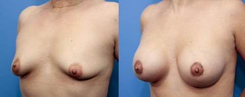 Breast Lift with Augmentation Gallery - Patient 58195619 - Image 3