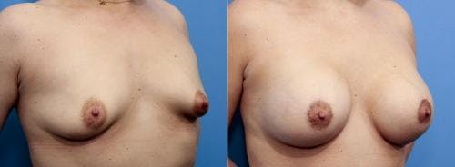 Breast Lift with Augmentation Gallery - Patient 58195619 - Image 4