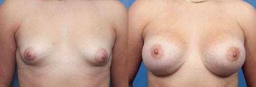 Correction of Tuberous Breast Gallery - Patient 58195620 - Image 1