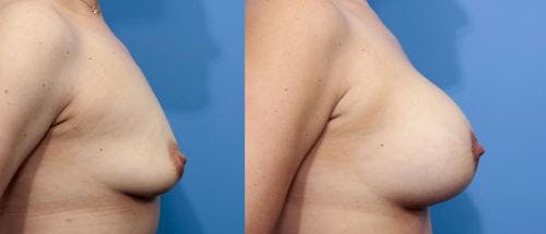 Breast Lift with Augmentation Gallery - Patient 58195619 - Image 5