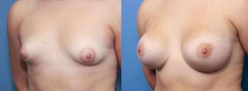 Correction of Tuberous Breast Gallery - Patient 58195620 - Image 2