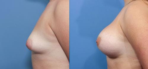 Correction of Tuberous Breast Gallery - Patient 58195620 - Image 3