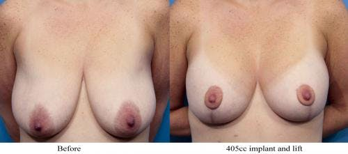 Breast Lift with Augmentation Gallery - Patient 58195621 - Image 1