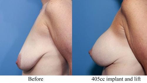 Breast Lift with Augmentation Gallery - Patient 58195621 - Image 2