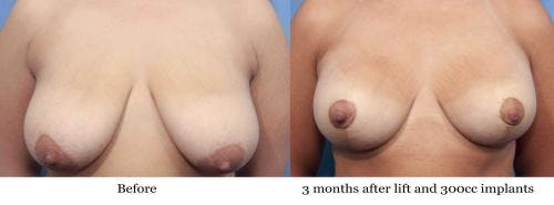 Breast Lift with Augmentation Gallery - Patient 58195630 - Image 1