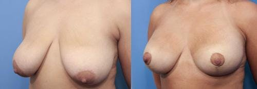 Breast Lift with Augmentation Gallery - Patient 58195630 - Image 2