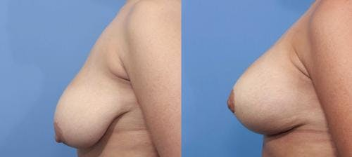 Breast Lift with Augmentation Gallery - Patient 58195630 - Image 3