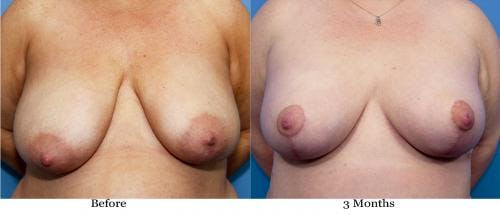 Breast Lift with Augmentation Gallery - Patient 58195632 - Image 1