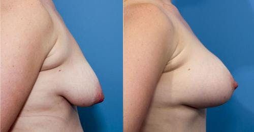 Correction of Tuberous Breast Gallery - Patient 58195634 - Image 2