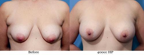 Correction of Tuberous Breast Gallery - Patient 58195634 - Image 1