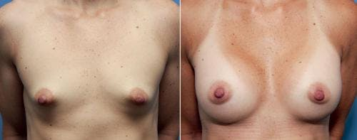 Correction of Tuberous Breast Gallery - Patient 58195636 - Image 1