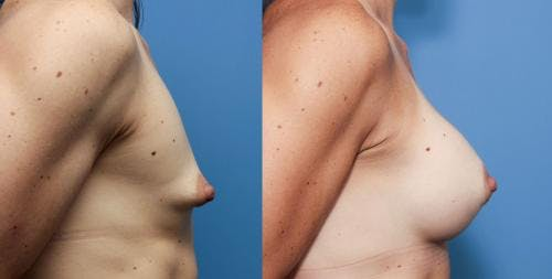 Correction of Tuberous Breast Gallery - Patient 58195636 - Image 2