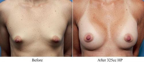 Correction of Tuberous Breast Gallery - Patient 58195636 - Image 3