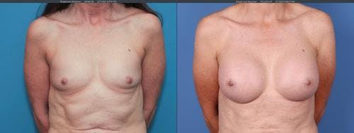 Breast Augmentation Gallery - Patient 58195637 - Image 1