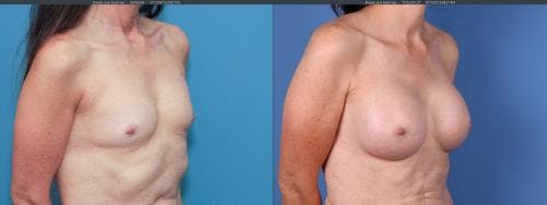 Breast Augmentation Gallery - Patient 58195637 - Image 2