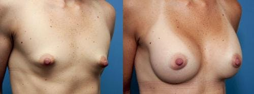 Correction of Tuberous Breast Gallery - Patient 58195636 - Image 4