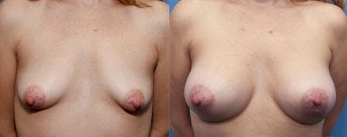 Correction of Tuberous Breast Gallery - Patient 58195638 - Image 1