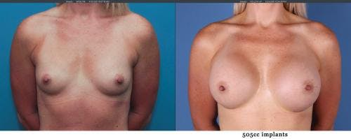 Breast Augmentation Gallery - Patient 58195640 - Image 1